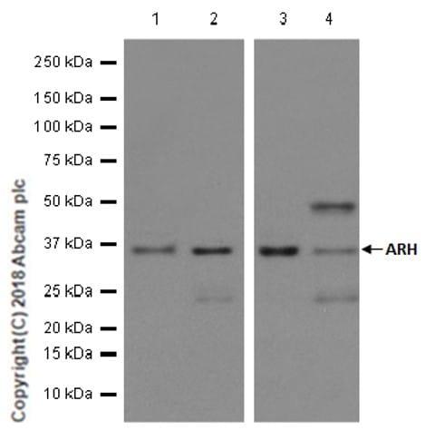 Western blot - Anti-ARH antibody [EPR13115] - N-terminal (ab181043)