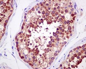Immunohistochemistry (Formalin/PFA-fixed paraffin-embedded sections) - Anti-Importin4/Imp4 antibody [EPR13660] (ab181046)