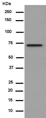 Western blot - Anti-CPEB1 antibody [EPR11775(2)] (ab181051)
