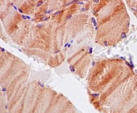 Immunohistochemistry (Formalin/PFA-fixed paraffin-embedded sections) - Anti-CaMKII delta antibody [EPR13095] (ab181052)