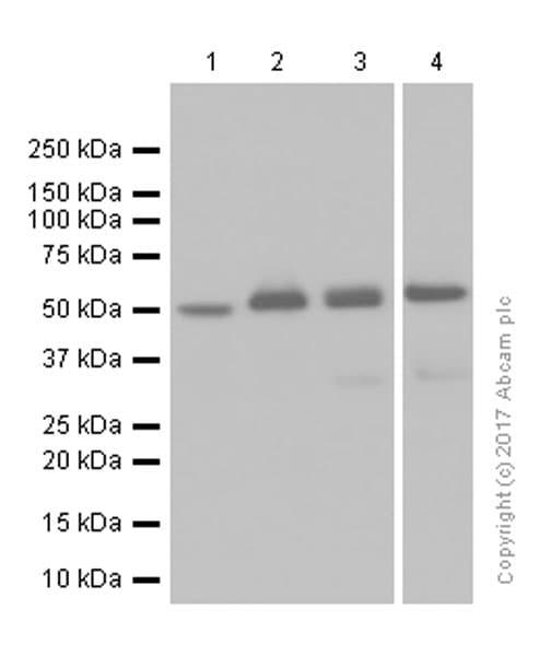 Western blot - Anti-CaMKII delta antibody [EPR13095] (ab181052)