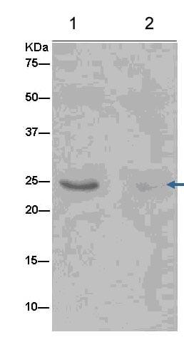 Immunoprecipitation - Anti-G-CSF antibody [EPR3203(N)(B)] (ab181053)