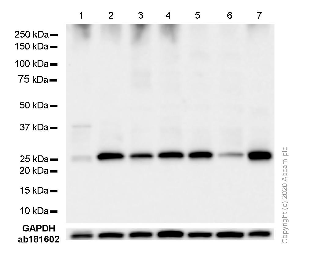 Western blot - Anti-G-CSF antibody [EPR3203(N)(B)] (ab181053)