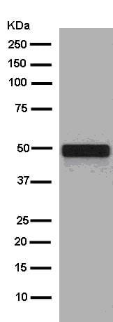 Western blot - Anti-Cytokeratin 16/K16 antibody [EPR13504] (ab181055)