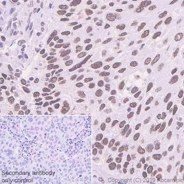 Immunohistochemistry (Formalin/PFA-fixed paraffin-embedded sections) - Anti-BRD1/BRL antibody [EPR12960] (ab181060)
