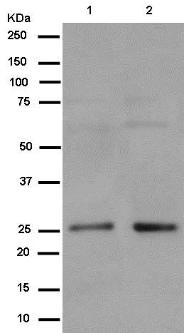 Western blot - Anti-PEX11B antibody [EPR12183] (ab181066)