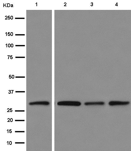 Western blot - Anti-VAPA antibody [EPR13589(B)] - N-terminal (ab181067)