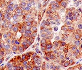 Immunohistochemistry (Formalin/PFA-fixed paraffin-embedded sections) - Anti-VAPA antibody [EPR13589(B)] - N-terminal (ab181067)