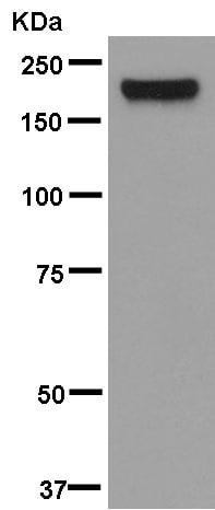 Western blot - Anti-MRC2/ENDO180 antibody [EPR13215] (ab181075)