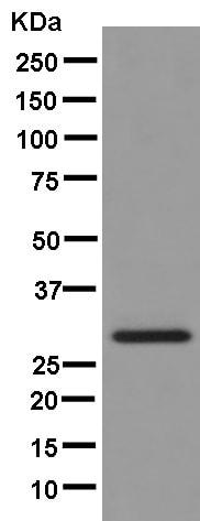 Western blot - Anti-SEC22B antibody [EPR12335] (ab181076)