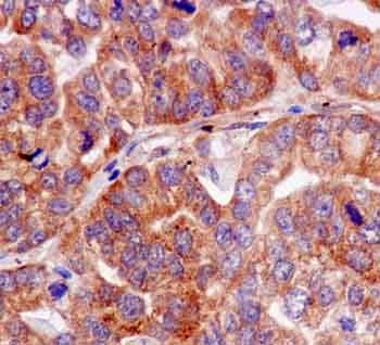 Immunohistochemistry (Formalin/PFA-fixed paraffin-embedded sections) - Anti-SEC22B antibody [EPR12335] (ab181076)