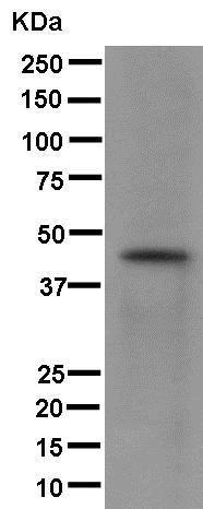 Western blot - Anti-K31 antibody [EPR12849] - N-terminal (ab181081)