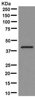 Western blot - Anti-SERPINB1/PI2 antibody [EPR13305(B)] (ab181084)