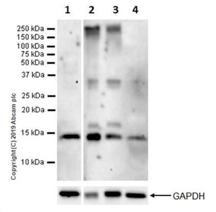 Western blot - Anti-Parvalbumin antibody [EPR13091] (ab181086)