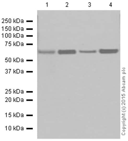 Western blot - Anti-CPT2 antibody [EPR13626] - C-terminal (ab181114)