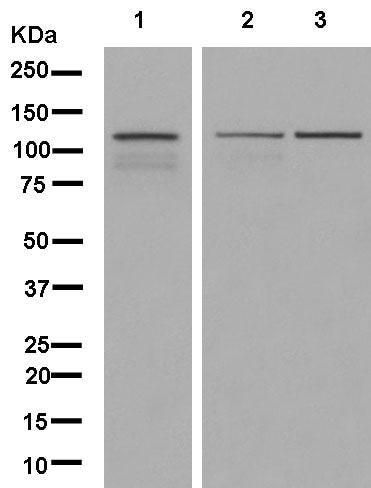 Western blot - Anti-TTF2 antibody [EPR12756] (ab181116)