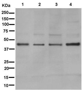 Western blot - Anti-RPUSD3 antibody [EPR12911] (ab181121)