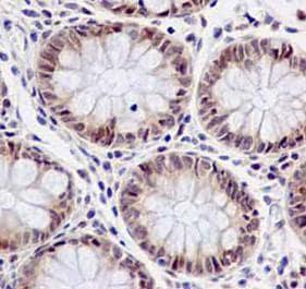 Immunohistochemistry (Formalin/PFA-fixed paraffin-embedded sections) - Anti-FUBP3 antibody [EPR13174-61] (ab181122)
