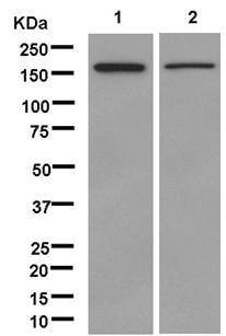 Western blot - Anti-IQGAP2 antibody [EPR13382] (ab181127)