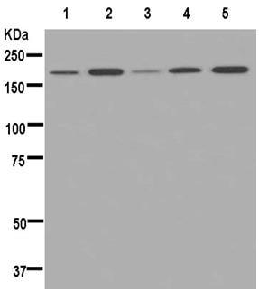 Western blot - Anti-Proteasome Activator Subunit 4/PSME4 antibody [EPR13576(B)] - N-terminal (ab181128)