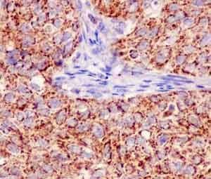 Immunohistochemistry (Formalin/PFA-fixed paraffin-embedded sections) - Anti-MUC1 antibody [EPR1025(2)] (ab181133)