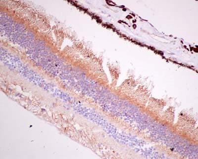 Immunohistochemistry (Formalin/PFA-fixed paraffin-embedded sections) - Anti-BBS2 antibody [EPR13183] (ab181134)