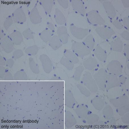 Immunohistochemistry (Formalin/PFA-fixed paraffin-embedded sections) - Anti-NPHS2 antibody [EPR13820] (ab181143)