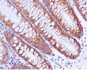 Immunohistochemistry paraffin embedded sections - Anti-G3BP antibody [EPR13986(B)] (ab181150)