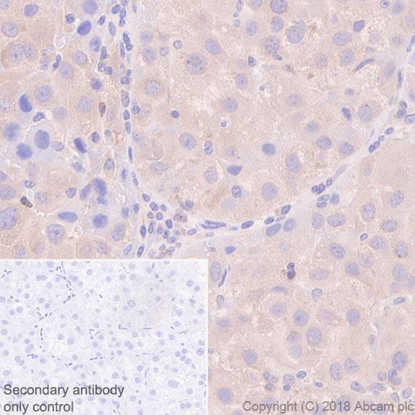 Immunohistochemistry (Formalin/PFA-fixed paraffin-embedded sections) - Anti-G3BP antibody [EPR13986(B)] (ab181150)