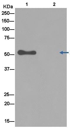 Immunoprecipitation - Anti-RCC1 antibody [EPR5859(2)] (ab181155)