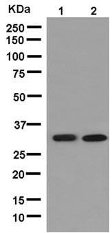 Western blot - Anti-TPM4 antibody [EPR13317] (ab181156)