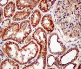 Immunohistochemistry (Formalin/PFA-fixed paraffin-embedded sections) - Anti-Arp3 antibody [EPR10429] - C-terminal (ab181164)