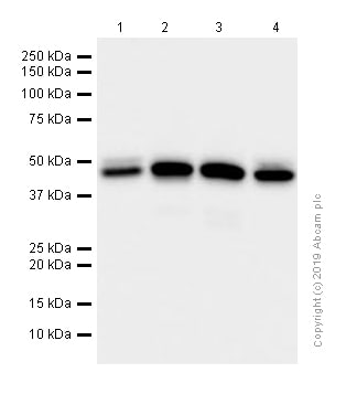Western blot - Anti-Arp3 antibody [EPR10429] - C-terminal (ab181164)