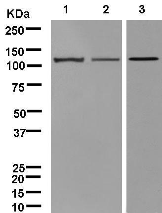 Western blot - Anti-DIAPH2/DIA antibody [EPR13158] (ab181165)