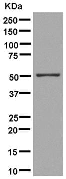 Western blot - Anti-ERLEC1 antibody [EPR13849] (ab181166)
