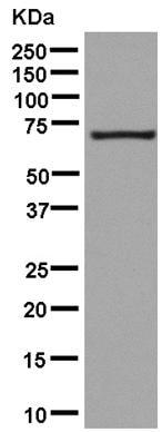 Western blot - Anti-PCK2 antibody [EPR14223(B)] (ab181170)