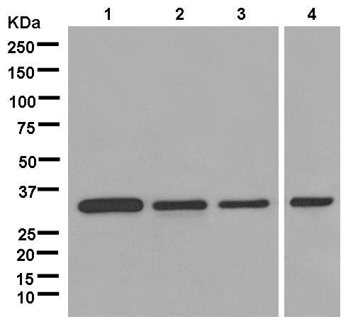 Western blot - Anti-kur antibody [EPR13320-66] (ab181173)