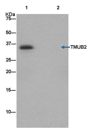 Immunoprecipitation - Anti-TMUB2 antibody [EPR13741] (ab181183)