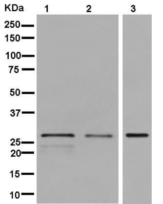 Western blot - Anti-SPAG7 antibody [EPR13391] (ab181187)