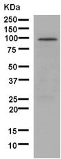 Western blot - Anti-gamma Adaptin antibody [EPR9874] (ab181189)