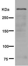 Western blot - Anti-Sacsin antibody [EPR11864] (ab181190)