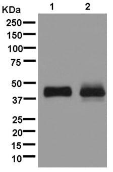 Western blot - Anti-LSECtin antibody [EPR13724] (ab181196)