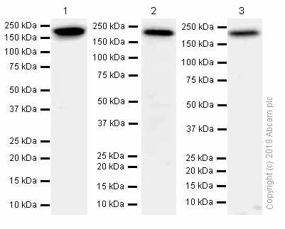Western blot - Anti-Proteasome Activator Subunit 4/PSME4 antibody [EPR13577(B)] - C-terminal (ab181203)