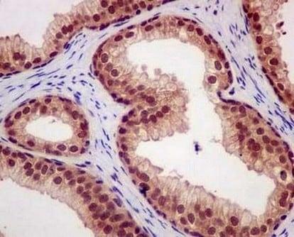 Immunohistochemistry (Formalin/PFA-fixed paraffin-embedded sections) - Anti-CAND1 antibody [EPR14242(B)] - C-terminal (ab181216)