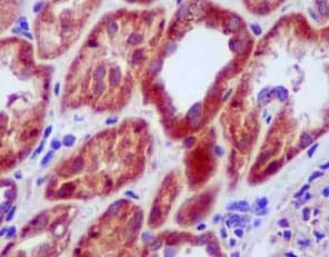 Immunohistochemistry (Formalin/PFA-fixed paraffin-embedded sections) - Anti-MRRF antibody [EPR14140(B)] (ab181223)