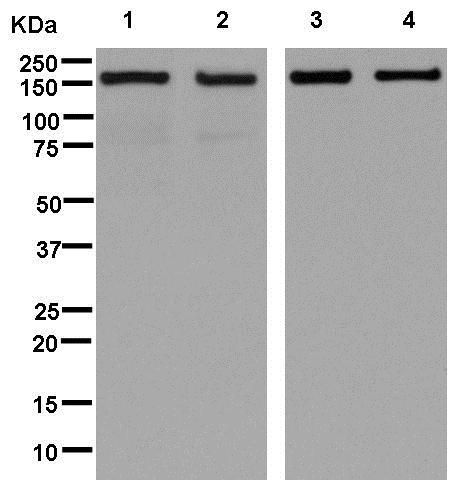 Western blot - Anti-alpha COP I/COPA antibody [EPR14273(B)] (ab181224)