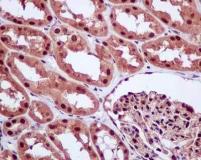 Immunohistochemistry (Formalin/PFA-fixed paraffin-embedded sections) - Anti-E1 Ubiquitin Activating Enzyme 1/UBA1 antibody [EPR14204(B)] (ab181225)