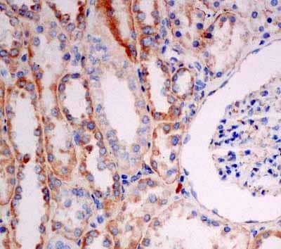 Immunohistochemistry (Formalin/PFA-fixed paraffin-embedded sections) - Anti-Solo antibody [EPR13772] (ab181228)