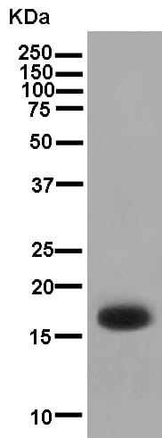 Western blot - Anti-KRTAP11-1 antibody [EPR13181] (ab181231)