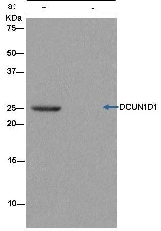 Immunoprecipitation - Anti-DCUN1D1 antibody [EPR13492] (ab181233)